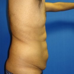 Manhattan abdominoplasty before 9